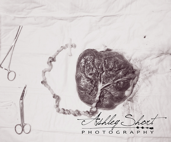 heart-shaped placenta with cord attached